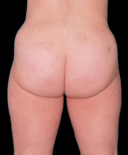 Buttock Liposuction After