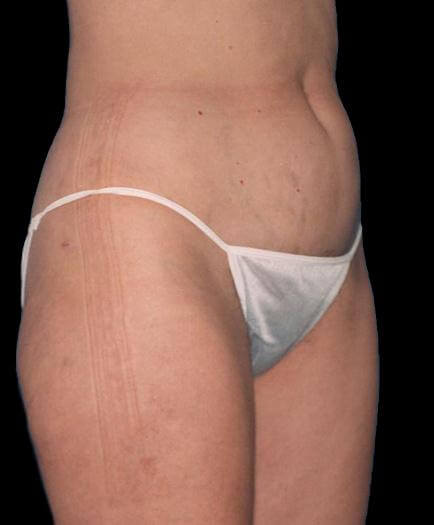 Liposuction Surgery After