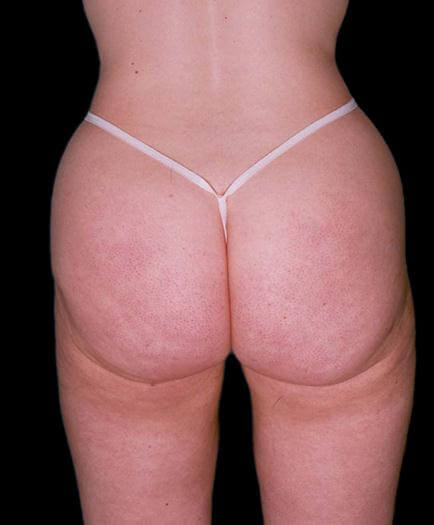 Thigh Lipo Surgery Back View After