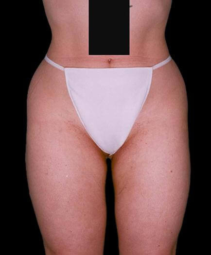 Thigh Lipo Surgery Front View After