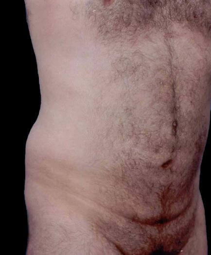 Liposuction For Men After