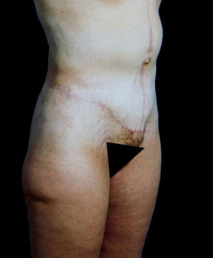 Post Bariatric Surgery After