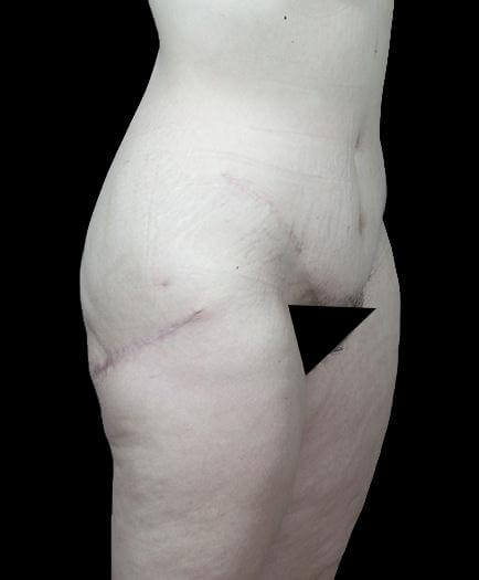 Thigh Lift Surgery After