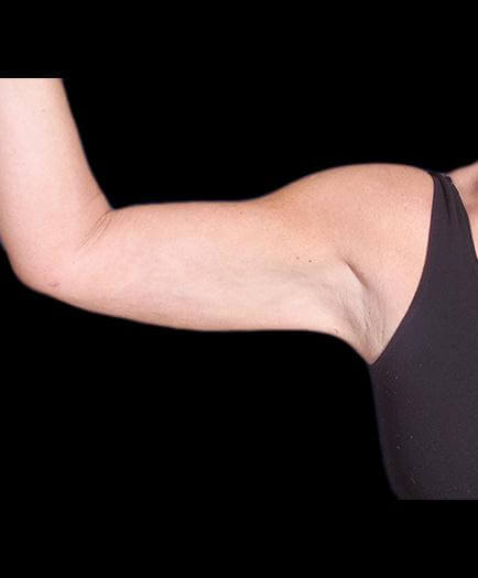 Arm Lift Procedure After