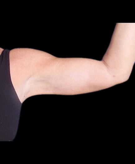 Arm Lift Plastic Surgery After