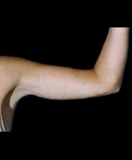 Arm Shaping After