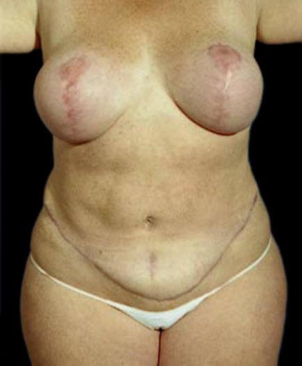 Body Contouring & Breast Reduction Front View After