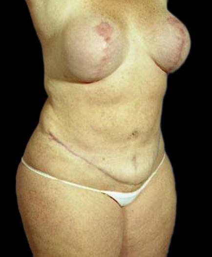 Body Contouring & Breast Quarter View Reduction After