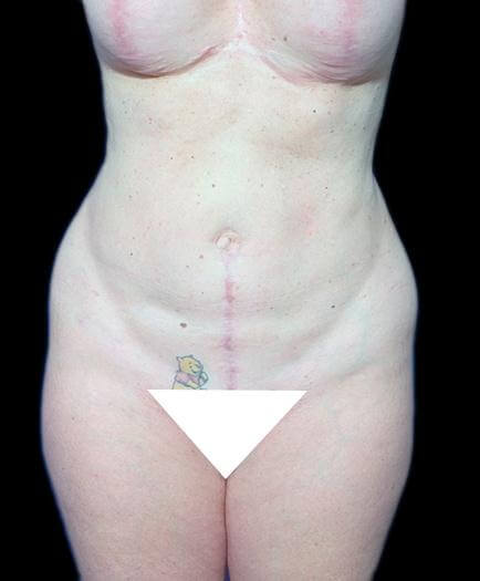 Breast Augmentation & Abdominoplasty After