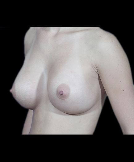 Breast Enhancement & Nipple Surgery After