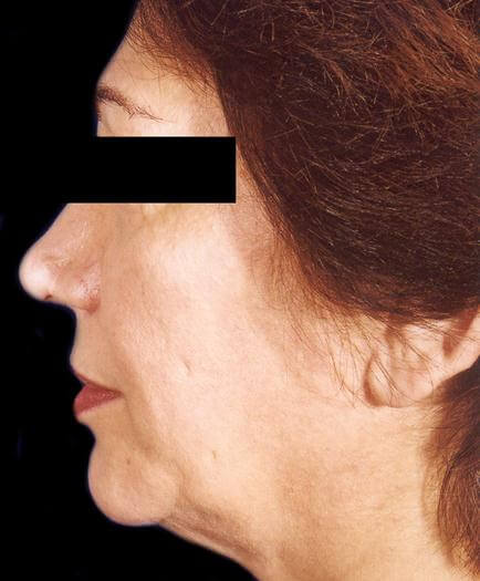 Before Facelift Surgery