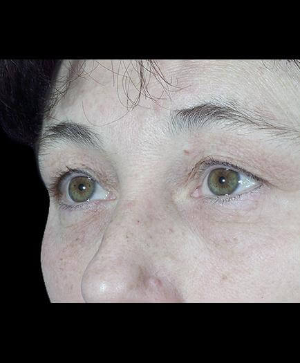 Before Blepharoplasty Left Side View