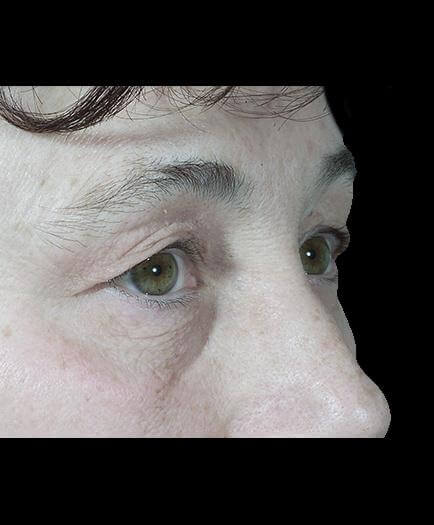 Before Blepharoplasty Right Side View