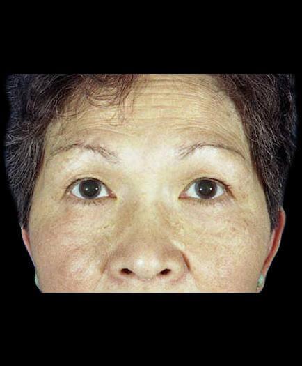 Before Virginia Blepharoplasty