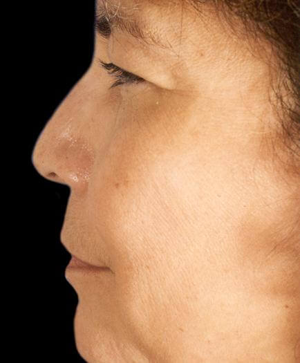 Before Rhinoplasty Side View