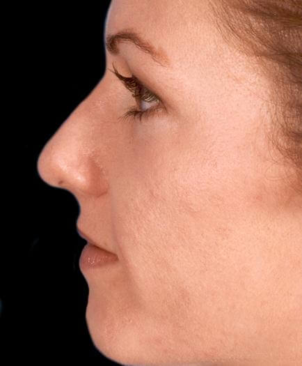 Before Rhinoplasty Surgery Side View