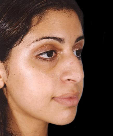 Rhinoplasty Surgery Before