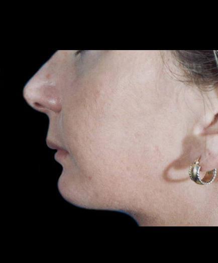 Before Lip Augmentation