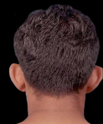 Before Male Cosmetic Facial Surgery Back View