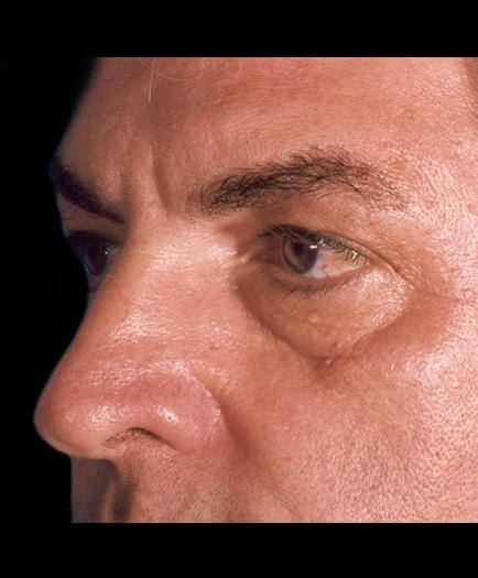 Before Male Cosmetic Facial Surgery Side View