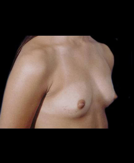 Before Breast Augmentation Right Side View