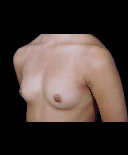 Before Breast Augmentation Left Side View