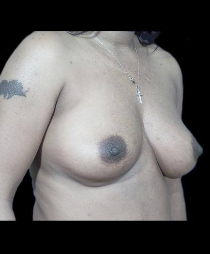 Before Breast Implants Right Side View