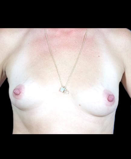 Before Breast Augmentation Image