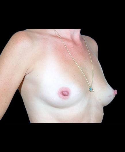 Before Breast Implants Image