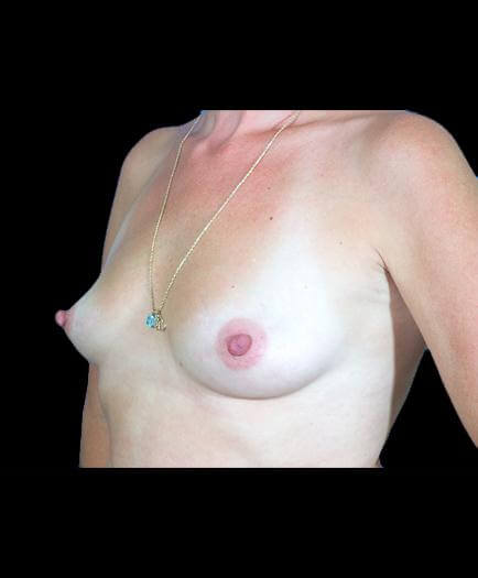 Before Breast Augmentation Surgery Image