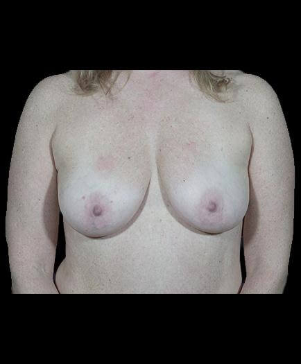 Breast Implant Surgery Before