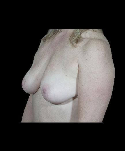Breast Implant Surgery Before Left Side View