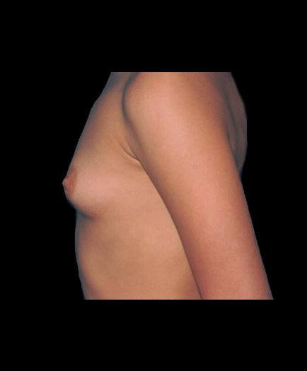 Before Breast Implant Surgery Left Side View