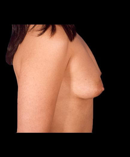 Breast Implant Surgery Before Right Side View