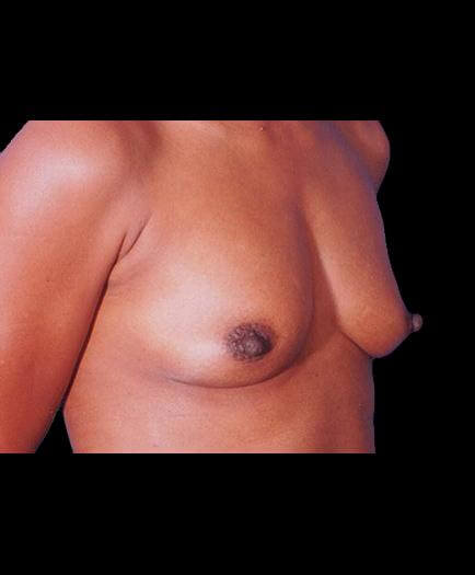 Before Breast Implant Surgery Right Side View