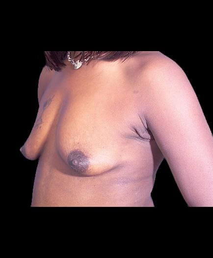 Before Breast Augmentation Left Side Image