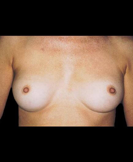 Breast Implants Before Image