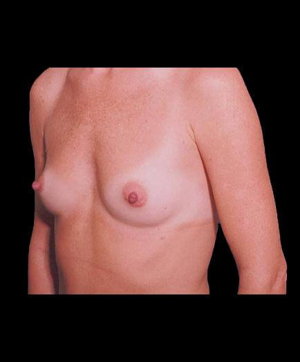 Breast Implants Before View