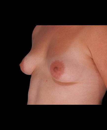 Breast Augmentation Surgery Before View