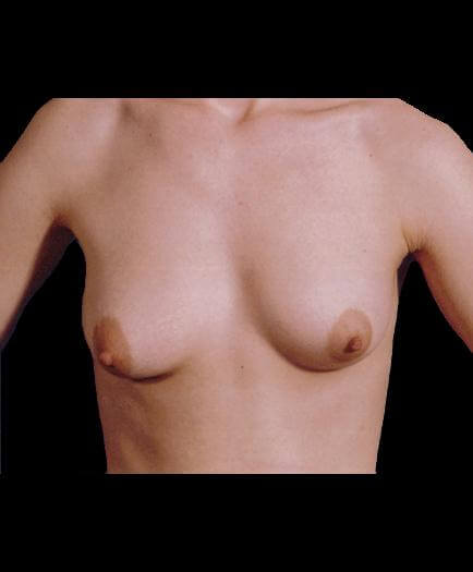 Breast Implant Surgery Before View