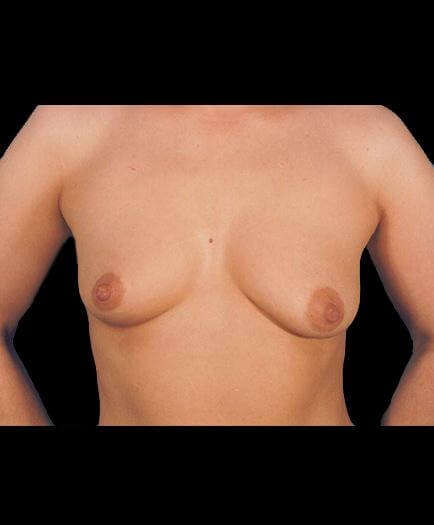 Breast Implant Surgery Before Photo