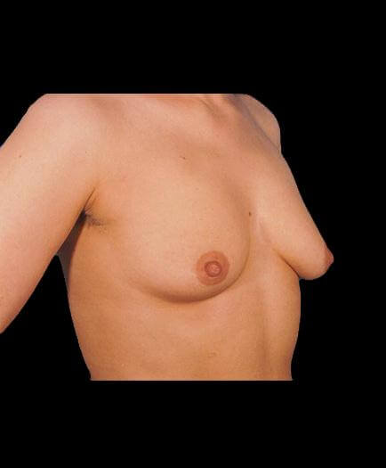 Breast Implant Surgery Before Right Side Photo