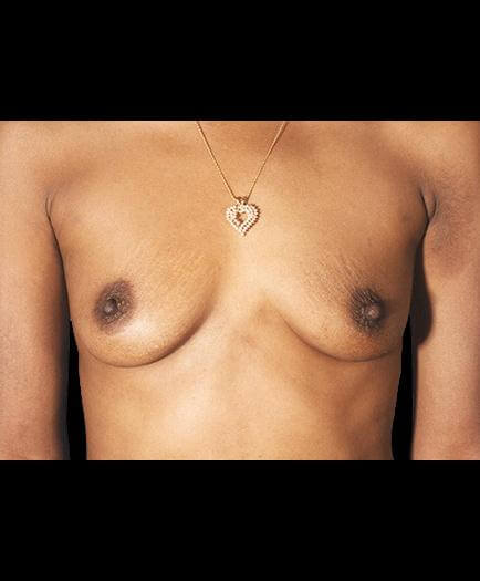 Breast Augmentation Before Picture