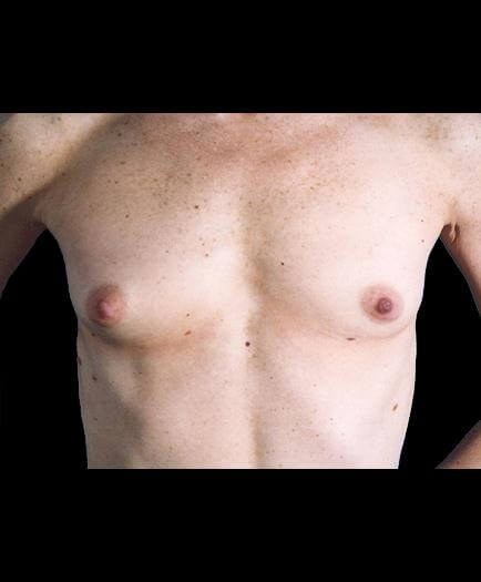 Breast Augmentation Surgery Before Picture