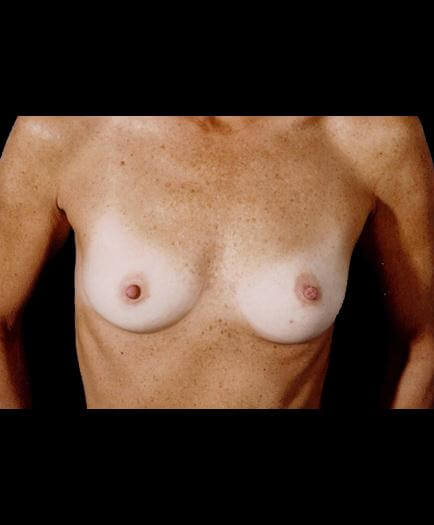 Breast Implant Surgery Before Picture