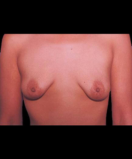 Before Breast Implants View