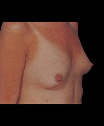 Before Breast Augmentation Surgery View