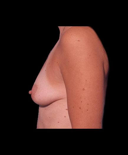 Before Breast Augmentation Photo