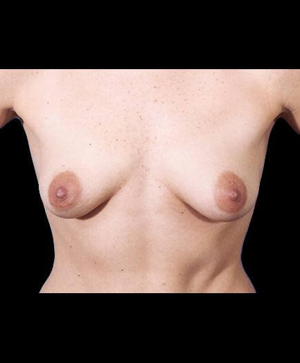 Before Breast Implants Photo