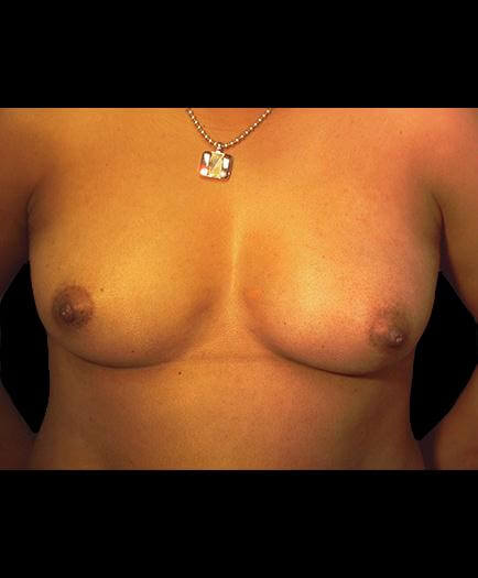 Before Breast Augmentation Surgery Photo